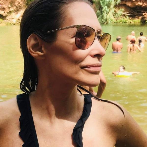 Sónia Brazão mostra corpo em biquíni nove anos depois de quase ter morrido em explosão