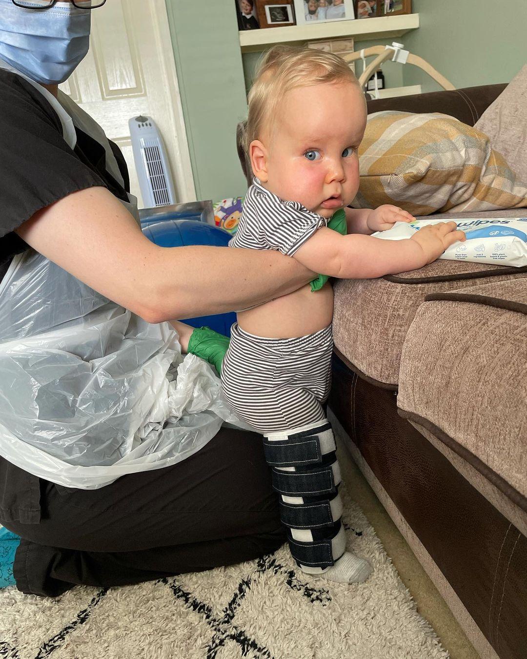 bebé Edward doença rara