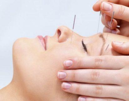 E se espetar agulhas na cara ajudar a minimizar os efeitos do envelhecimento? Era capaz?